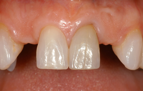 PG-ImplantCrowns-5a