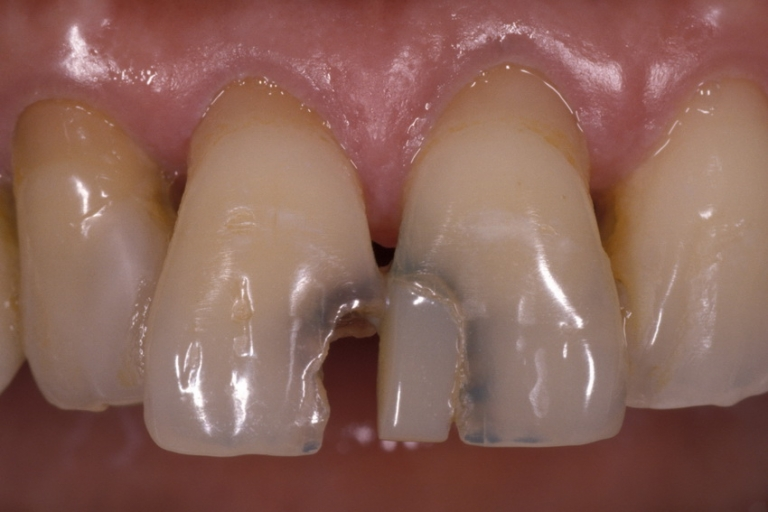 Composite-Fillings-4-1_resize1